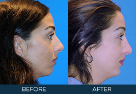 Rhinoplasty Case 8725