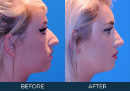 Rhinoplasty Case 9696