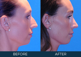 Rhinoplasty Case 9676
