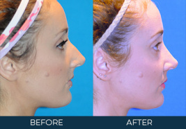 Rhinoplasty Case 8838