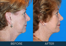 Rhinoplasty Case 6932