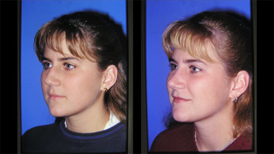 Nashville Nasal (Rhinoplasty) Plastic Surgery Before and After