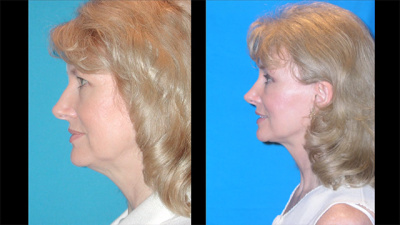 Facelift, Brow Lift, Eyelid Lift, Nasal Surgery Before and After