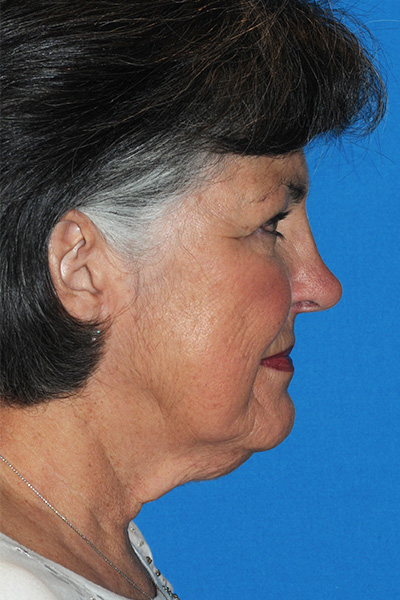 Upper Blepharoplasty, Facelift Before