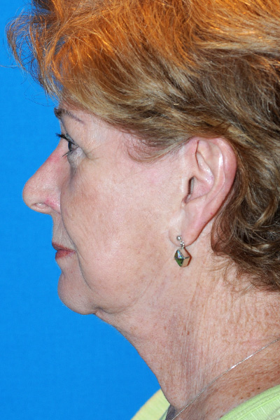 Revision Facelift, Rhinoplasty Before