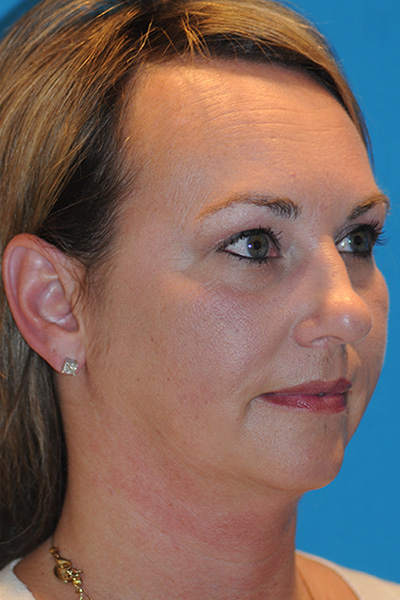 Chin Augmentation, Facelift, Rhinoplasty Before